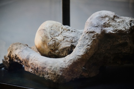 Plaster casts of a victim